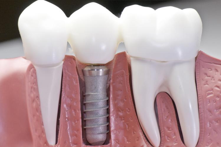 Le nostre news - Studio dentistico Lia Molinari - Dentista a Piacenza